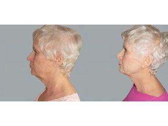 Facelift (operace obličeje), SMAS lifting - 700668