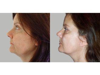 Facelift (operace obličeje), SMAS lifting - 700761