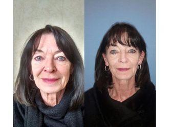 Facelift (operace obličeje), SMAS lifting - 700815