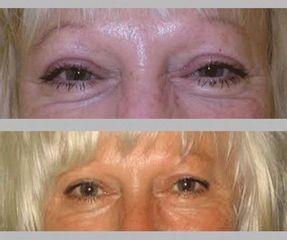 upper eyelid correction 5 430x360