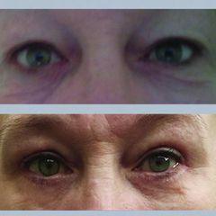 Upper eyelids mediczech skala3