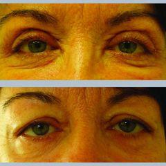 Upper eyelids mediczech skala2