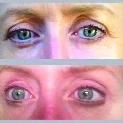 Upper eyelids mediczech skala1