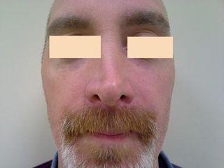 Mekky nos skala pred2 upr