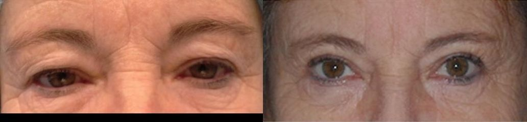 Upper eyelid surgery after1 Martin Skala