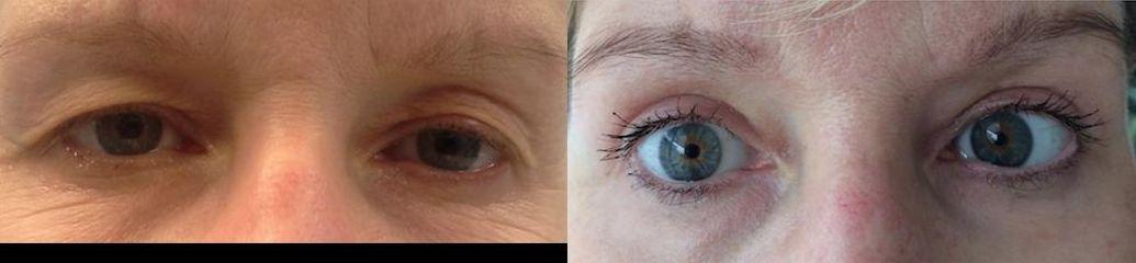 Upper eyelid surgery before2 Martin Skala