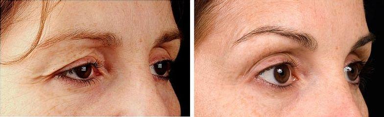 Termage oči před a poté