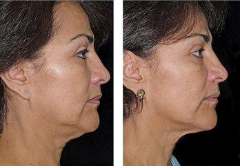 Thermage obličej před a po 1 měsíci