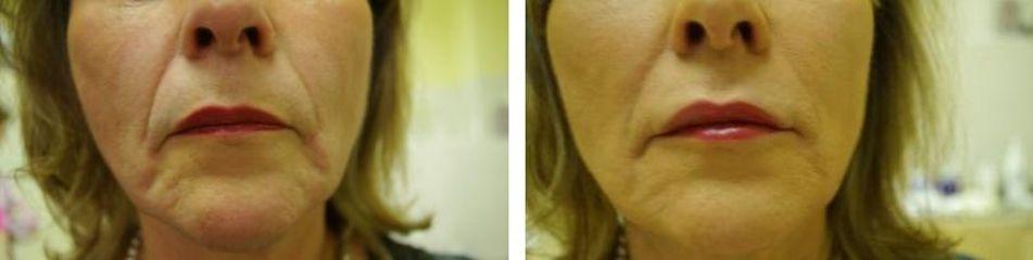Výplně nosoretní rýhy a brada č. 2 před a po
