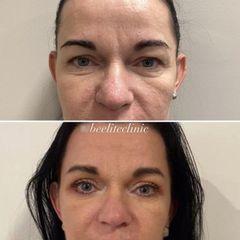 Operace očních víček - BE ELITE CLINIC