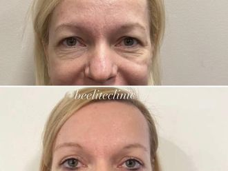 Operace očních víček - 742053