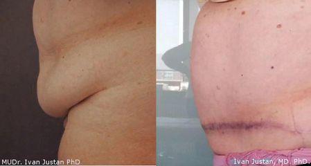 Operace břicha