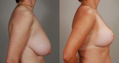Zmenšení prsou