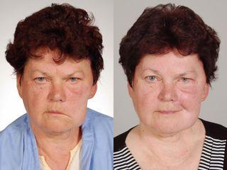 Reanimace paretického obličeje