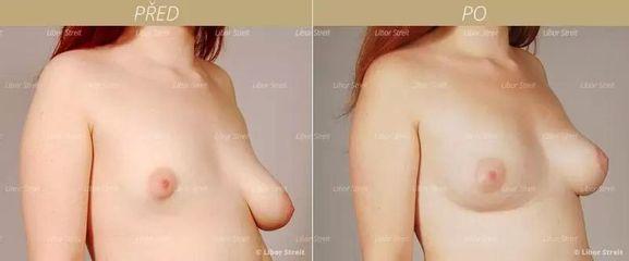 BEFORE plastika prsou