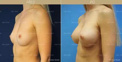 BEFORE kompozitni augmentace zvetseni prsou vlastnim tukem