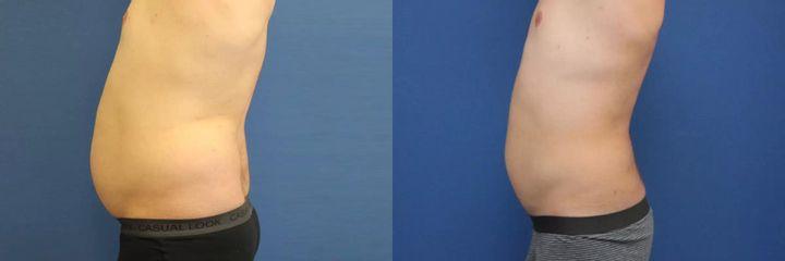 Liposukce pomocí přístroje Body-jet – oblast boky a břicho