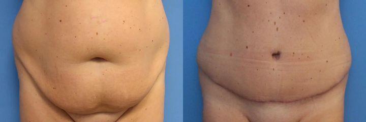 AbdominoplastikaAbdominoplastika (operace břicha)