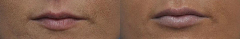 Belotero contour + shape