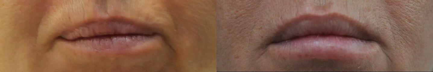 Belotero contour + shape, Luminera HYDRYALIX LIPS