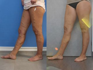 Laserová operace křečových žil