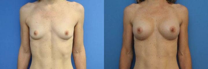 Foceno po 10 týdnech od zákroku, B-Lite anatomické 320 ml
