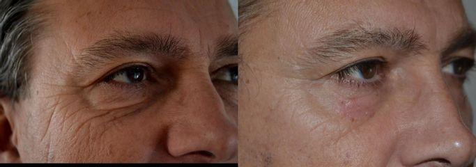 Plexr - Nová metoda liftingu(plastiky) očních víček