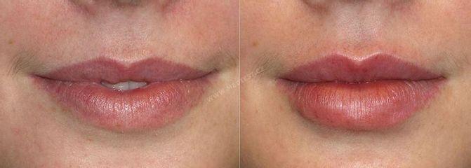 Dermální výplně rtů (2)