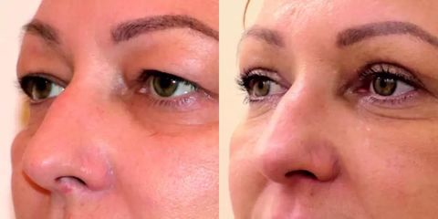 Operace očních víček