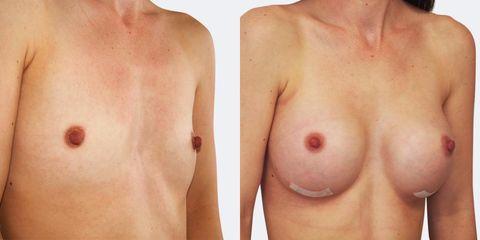 Zvětšení prsou - MUDr. Martin Fiala - MEDICOM Clinic