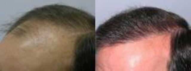 vlasy2 c
