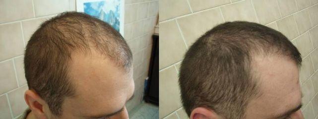 vlas3