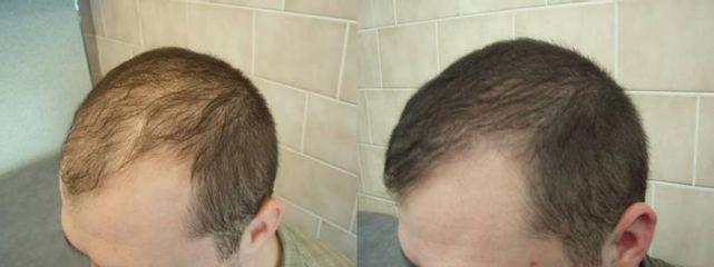vlas4
