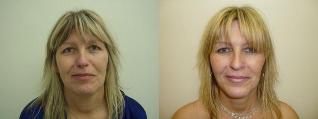 Předoperační foto 50-ti leté pacientky s velkým podbradkem a známkami stárnoucího obličeje v dolní p
