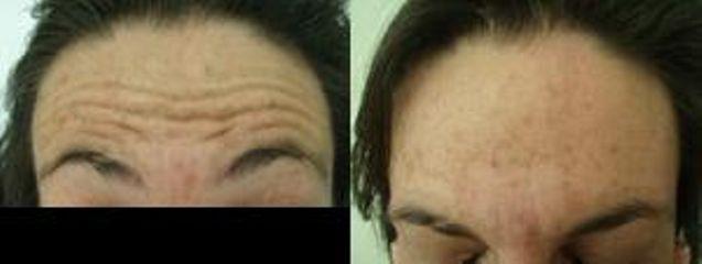 42 letá klientka s vráskami čela