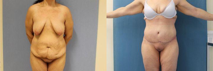 Pacientka po velké redukci hmotnosti indikována k dolnímu body liftu