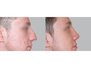 Plastika nosu (Rhinoplastika)