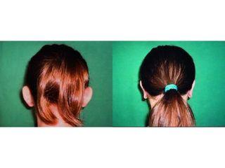 Operace uší (Otoplastika)