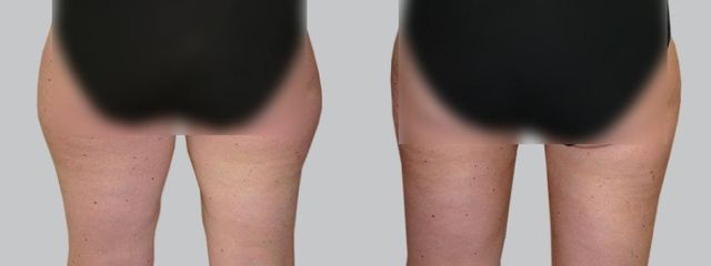 liposukce 2b