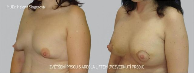 BEFORE BA + areola lift 2