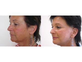 Facelift (operace obličeje), SMAS lifting - 700522