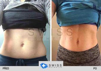 BEFORE swiss esthetic lipox slim 1