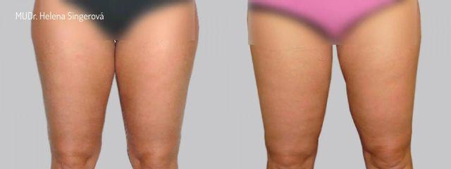 BEFORE liposukce 1b 01