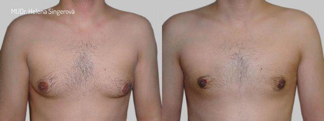 BEFORE gynekomastie B
