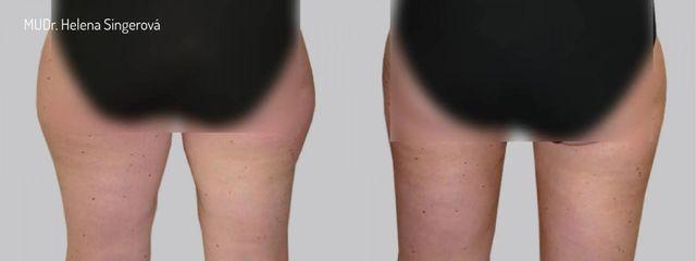BEFORE liposukce 2b 01