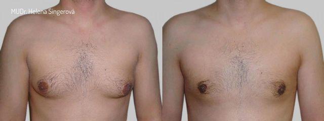 BEFORE gynekomastie C 01