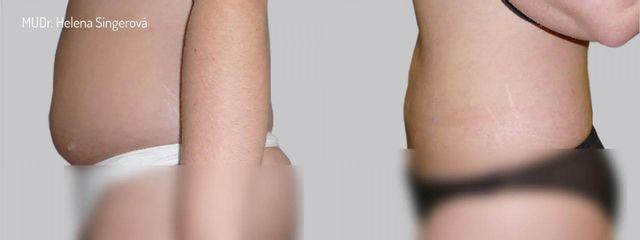 BEFORE liposukce 4b 01