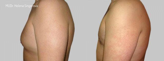 BEFORE gynekomastie D 01