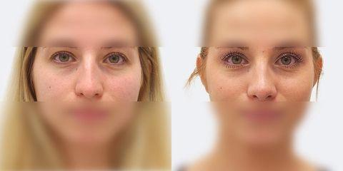 2 plasticka operace nosu zepredu pred