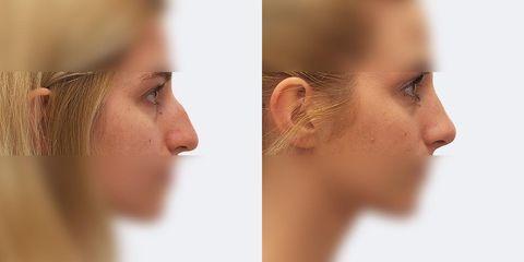 2 plasticka operace nosu bok2 pred